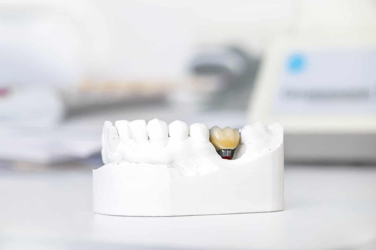השתלת שיניים בזאלית , implants