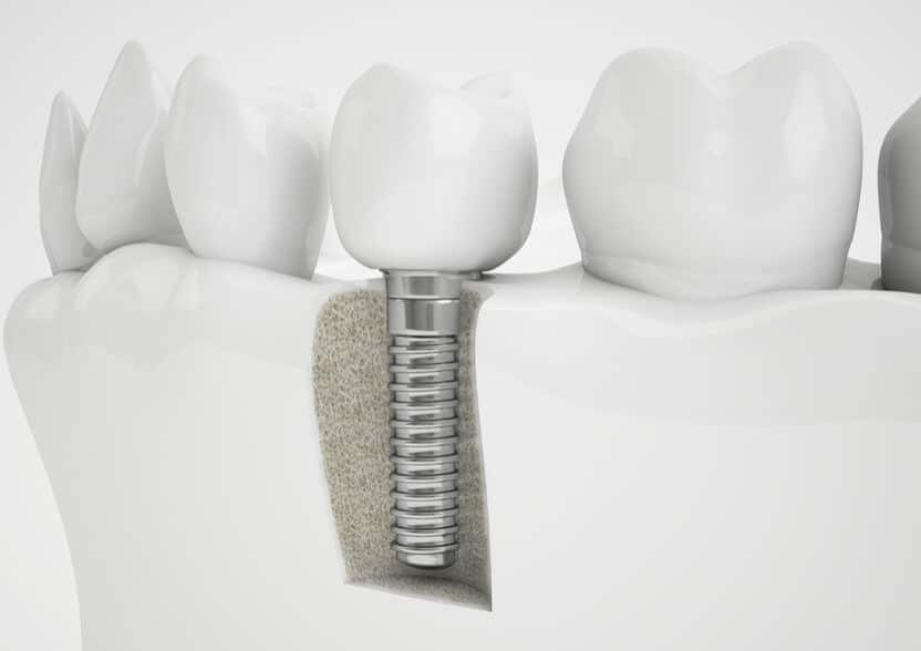 השתלת שן, All on 4 Dental Implants