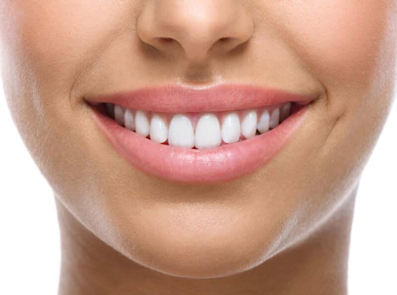 קו החיוך מושפע ממבנה הלסת