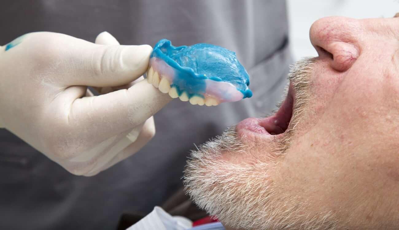 שיניים תותבות בגיל צעיר