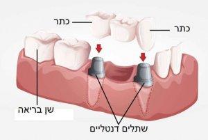 Реконструкция челюсти за один день
