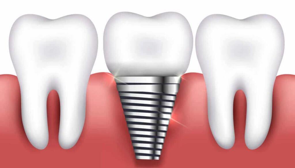 השתלת שיניים ביום אחד , One day dental implants