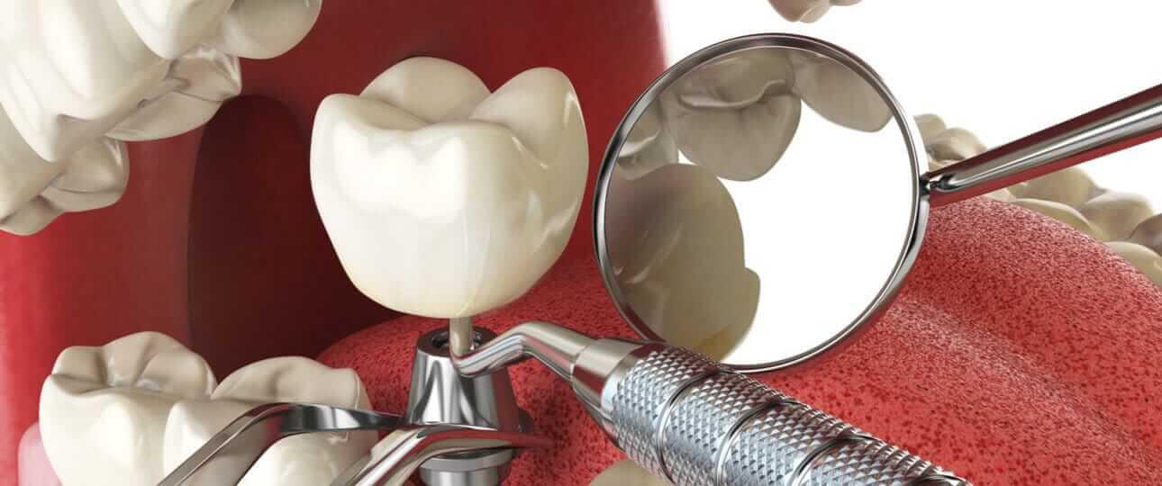 תקריב על סוגי השתלות שיניים השונות - המדריך המלא