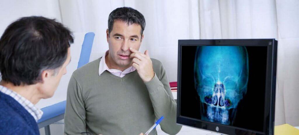 הרמת סינוס: כל המידע על טיפול השיניים המתיש הזה