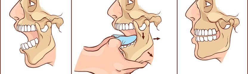 כאבי ראש ושיניים - תסמונת מפרק הלסת