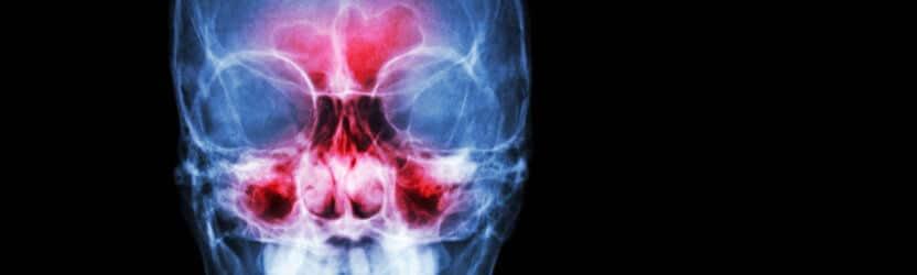כאבי ראש ושיניים