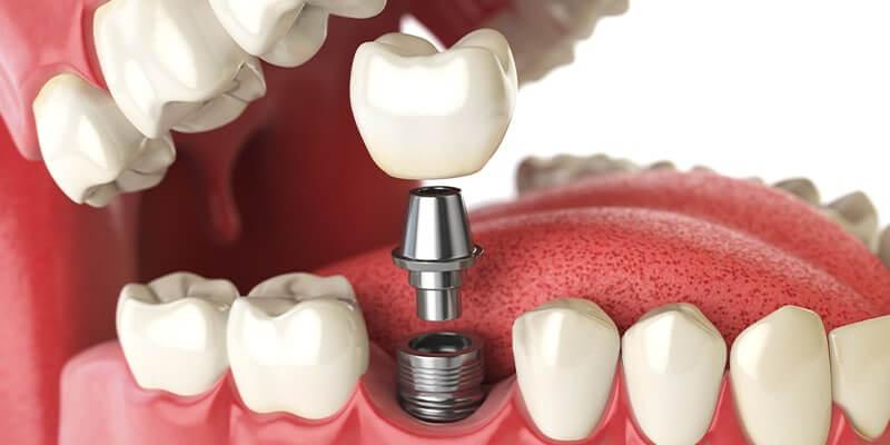 השתלת שן, שתלים דנטליים, שתל לשיניים, שן,