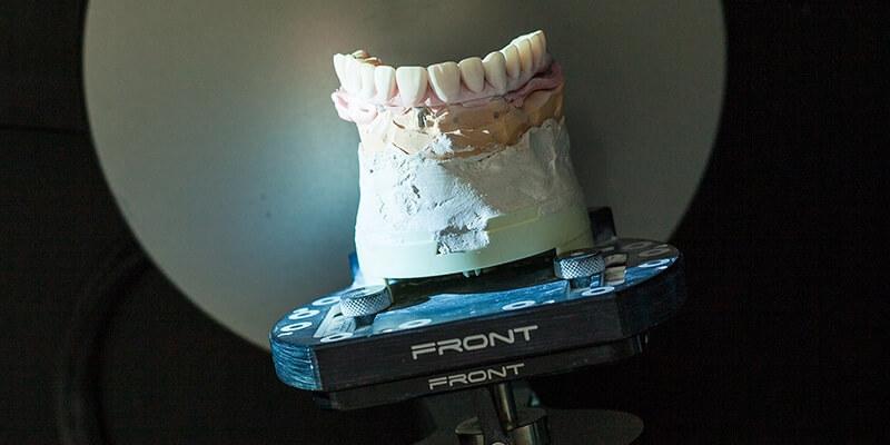 שתלים לשיניים