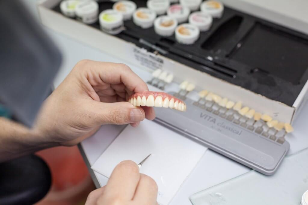 סט שיניים להשתלה