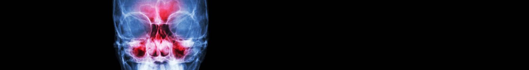 סטריפ צילום תלת מימד