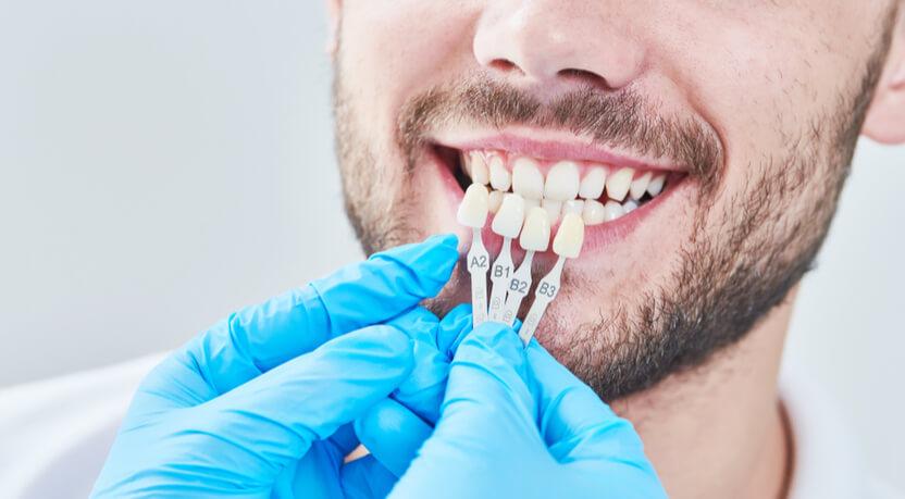 שיקום שיניים