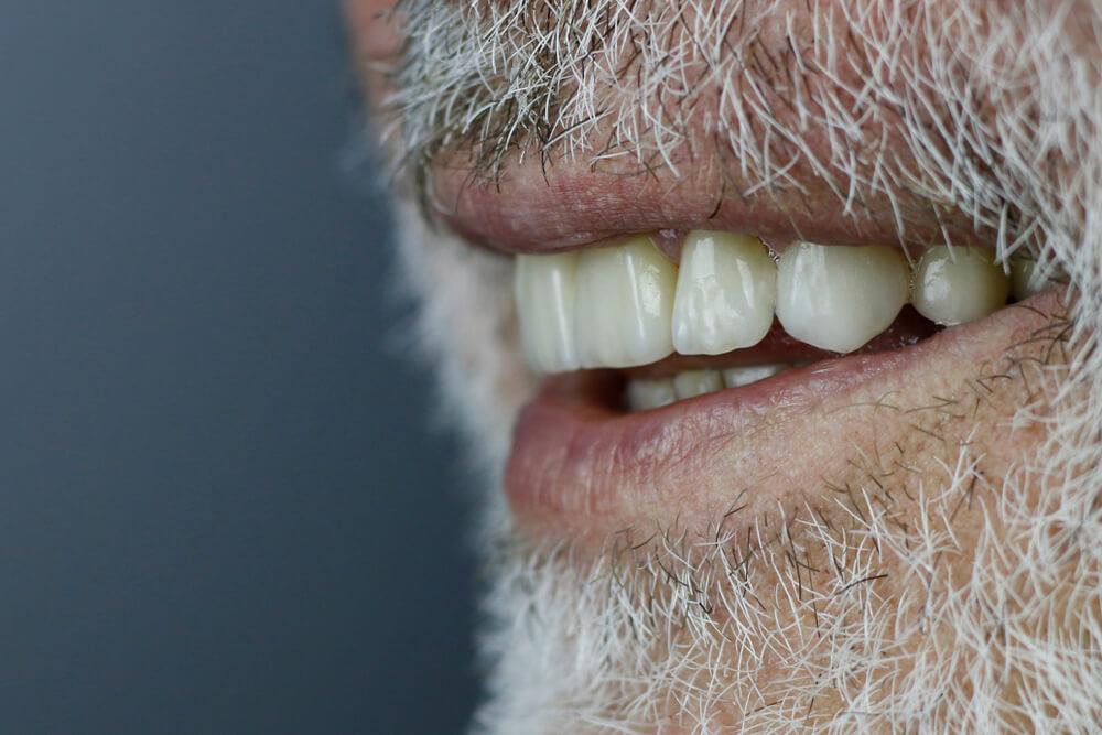 שיניים מזירקוניה